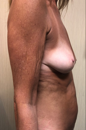 Before Photo - Mommy Makeover - Case #21572 - Mommy Makeover on a 58 year old female - Lateral View