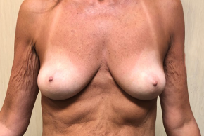 Before Photo - Breast Augmentation - Case #21573 - Silicone Breast Augmentation on a 58 year old female - Frontal View