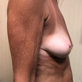 Before Photo - Breast Augmentation - Case #21573 - Silicone Breast Augmentation on a 58 year old female - Lateral View