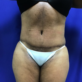 After Photo - Tummy Tuck - Case #21576 - Tummy Tuck and Liposuction - Frontal View