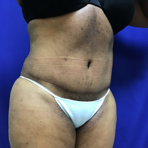 After Photo - Tummy Tuck - Case #21576 - Tummy Tuck and Liposuction - Oblique View