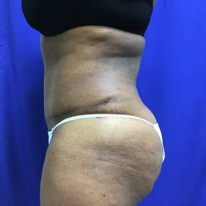 After Photo - Tummy Tuck - Case #21576 - Tummy Tuck and Liposuction - Lateral View