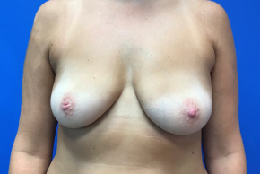 Before Photo - Breast Augmentation - Case #21577 - Breast Augmentation on a 40 year old female - Frontal View