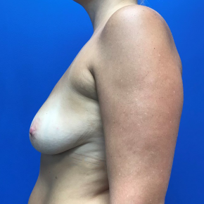 Before Photo - Breast Augmentation - Case #21577 - Breast Augmentation on a 40 year old female - Lateral View