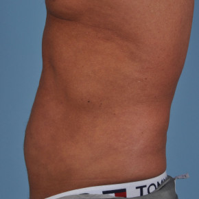 After Photo - Liposuction - Case #21581 - Male abdomen and hiprolls - Lateral View