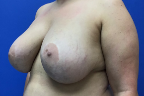 Before Photo - Breast Revision - Case #21586 - Implant Removal and Mastopexy on a 34 year old female - Oblique View