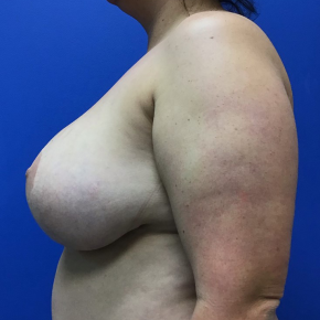 Before Photo - Breast Revision - Case #21586 - Implant Removal and Mastopexy on a 34 year old female - Lateral View