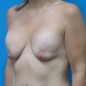 Before Photo - Breast Augmentation - Case #21978 - 33 year old - Breast Implant Exchange with mastopexy - Oblique View