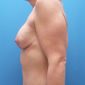 After Photo - Breast Augmentation - Case #21978 - 33 year old - Breast Implant Exchange with mastopexy - Lateral View