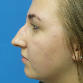 Before Photo - Nose Surgery - Case #21979 - 19 year old  -  Open Rhinoplasty  -  6 months post-op - Lateral View