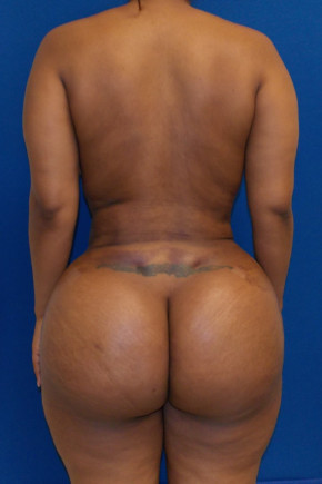 After Photo - Buttock Lift - Case #21981 - Brazilian Buttock Lift  - Posterior View