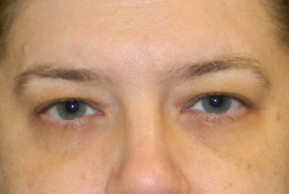 Before Photo - Eyelid Surgery - Case #21986 - Upper Eyelid Lift - Frontal View