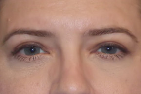 After Photo - Eyelid Surgery - Case #21986 - Upper Eyelid Lift - Frontal View