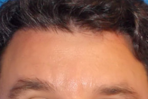 After Photo - Botulinum Toxin - Case #21989 - Botox to Forehead - Frontal View