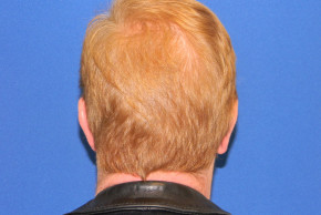 After Photo - Ear Surgery - Case #21992 - Otoplasty - Posterior View