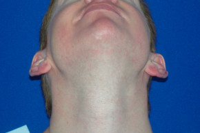 Before Photo - Ear Surgery - Case #21992 - Otoplasty - Worm's Eye View