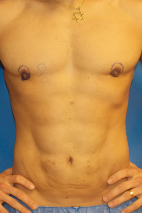 After Photo - Liposuction - Case #21993 - Abdominal Etching/Liposuction - Frontal View
