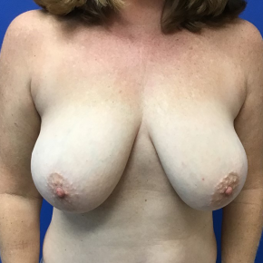 Before Photo - Breast Reduction - Case #22012 - Breast Reduction on a 48 year old female - Frontal View