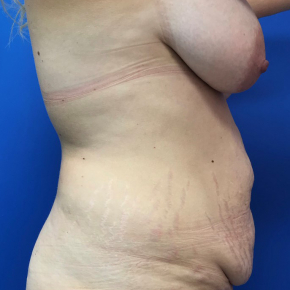 Before Photo - Tummy Tuck - Case #22020 - Lipoabdominoplasty on a 32 year old female - Lateral View