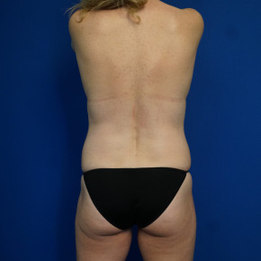 Before Photo - Mommy Makeover - Case #22023 - 46 year old female after Mommy Makeover - Posterior Oblique View