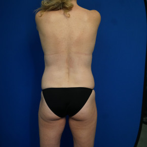 Before Photo - Mommy Makeover - Case #22023 - 46 year old female after Mommy Makeover - Posterior View
