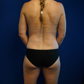 After Photo - Mommy Makeover - Case #22023 - 46 year old female after Mommy Makeover - Posterior View
