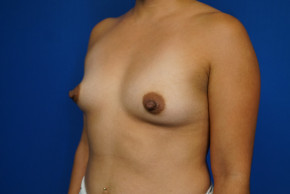 Before Photo - Breast Augmentation - Case #22024 - 30 Year Old Breast Augmentation Patient - Oblique View