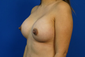 After Photo - Breast Augmentation - Case #22024 - 30 Year Old Breast Augmentation Patient - Oblique View