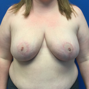 After Photo - Breast Reduction - Case #22065 - Breast Reduction on a 28 year old female  - Frontal View