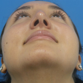 After Photo - Nose Surgery - Case #22073 - 21 year-old  -  Rhinoplasty  -  4 months post-op - Worm's Eye View