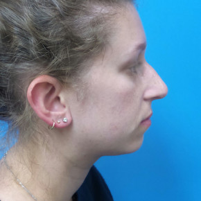 Before Photo - Nose Surgery - Case #22134 - 25 year old  -  Rhinoplasty/Septoplasty/Partial Turbinectomy  -  7 months post-op - Lateral View