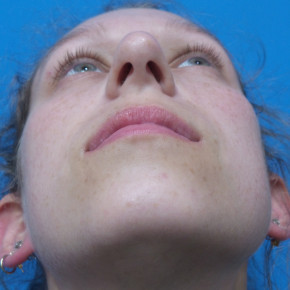 Before Photo - Nose Surgery - Case #22134 - 25 year old  -  Rhinoplasty/Septoplasty/Partial Turbinectomy  -  7 months post-op - Worm's Eye View
