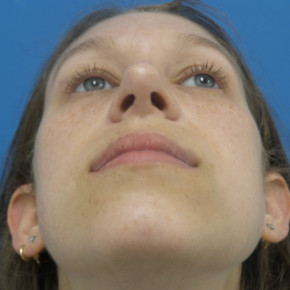 After Photo - Nose Surgery - Case #22134 - 25 year old  -  Rhinoplasty/Septoplasty/Partial Turbinectomy  -  7 months post-op - Worm's Eye View