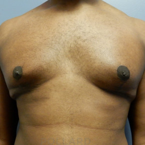 After Photo - Gynecomastia - Case #22143 - Frontal View