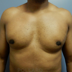 After Photo - Gynecomastia - Case #22144 - Frontal View