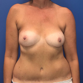 After Photo - Breast Reconstruction - Case #22186 - Breast Reconstruction on a 53 year old female - Frontal View