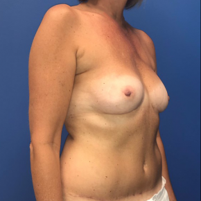 After Photo - Breast Reconstruction - Case #22186 - Breast Reconstruction on a 53 year old female - Oblique View