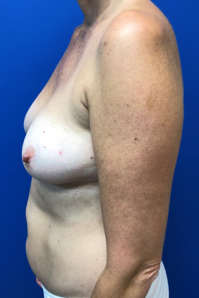 Before Photo - Breast Reconstruction - Case #22186 - Breast Reconstruction on a 53 year old female - Lateral View