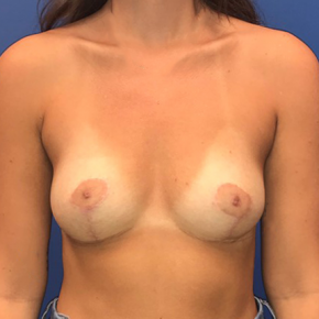 After Photo - Breast Reduction - Case #22187 - Breast Reduction on a 20 year old female - Frontal View