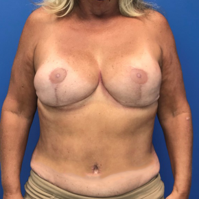 After Photo - Breast Reconstruction - Case #22206 - Breast reconstruction on a 59 year old female - Frontal View