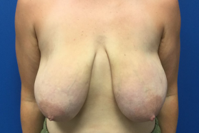 Before Photo - Breast Lift - Case #22251 - Breast lift on a 32 year old female - Frontal View