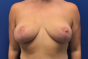After Photo - Breast Lift - Case #22251 - Breast lift on a 32 year old female - Frontal View