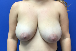 Before Photo - Breast Reduction - Case #22252 - Breast Reduction on a 41 year old female - Frontal View