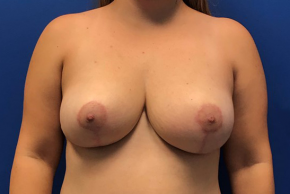 After Photo - Breast Reduction - Case #22252 - Breast Reduction on a 41 year old female - Frontal View