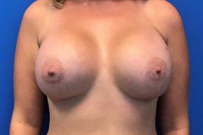 After Photo - Breast Augmentation - Case #22259 - Breast Augmentation on a 37 year old female - Frontal View