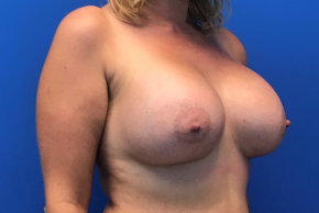 After Photo - Breast Augmentation - Case #22259 - Breast Augmentation on a 37 year old female - Oblique View