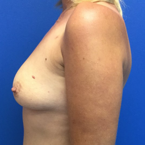 Before Photo - Breast Augmentation - Case #22259 - Breast Augmentation on a 37 year old female - Lateral View