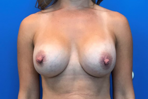 After Photo - Breast Revision - Case #22420 - Breast Revision on a 36 year old female  - Frontal View