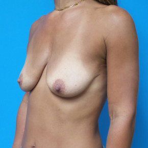 Before Photo - Breast Augmentation - Case #22422 - 39 year old  -  Bilateral Breast Augmentation with Lift/Subglandular –  235cc Smooth, Soft, Low Profile Silicone Gel implants  -  2 1/2 months post-op - Oblique View