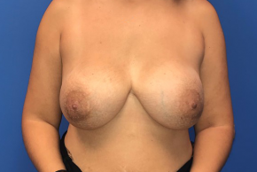 Before Photo - Breast Revision - Case #22426 - Breast implant removal on a 38 year old female  - Frontal View